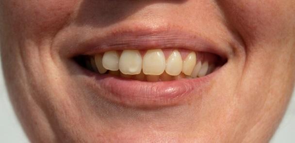 Бели петна по зъбите ми, лечение в Благоевград